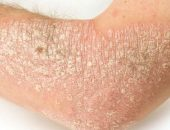 Volga régió központja pikkelysömör és vitiligo kezelésére hogyan lehet enyhíteni egy vörös foltot az arcon