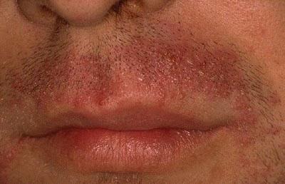 vörös foltok az arcon férfi fotó pikkelysömör kezelése imunofan véleményekkel