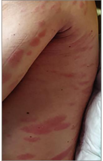 vörös foltok jelentek meg a lábán és viszketõ fotón