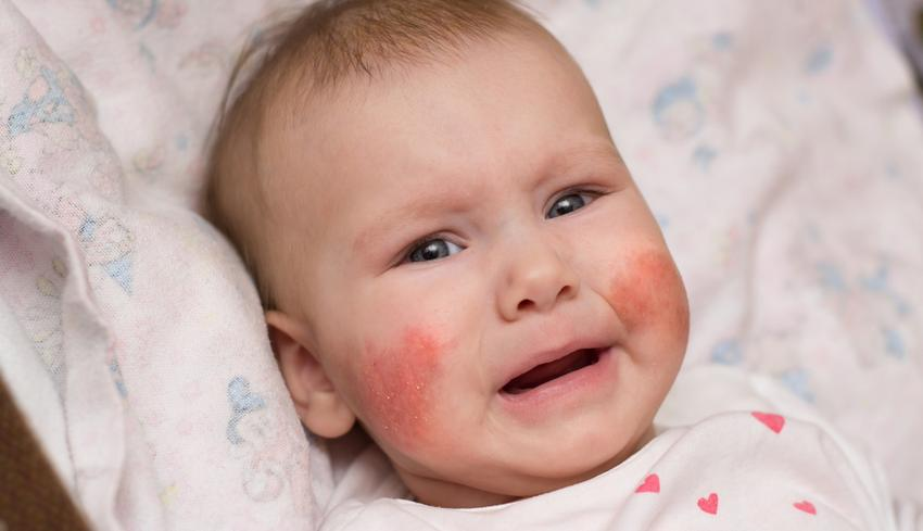 vörös foltokkal borított arc és viszkető fotó