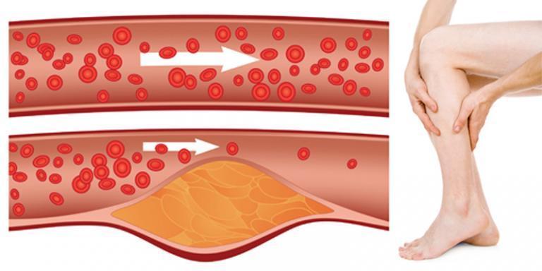 fotó piros kerek foltok a lábakon olyan betegségek, amelyekben vörös foltok jelennek meg a bőrön