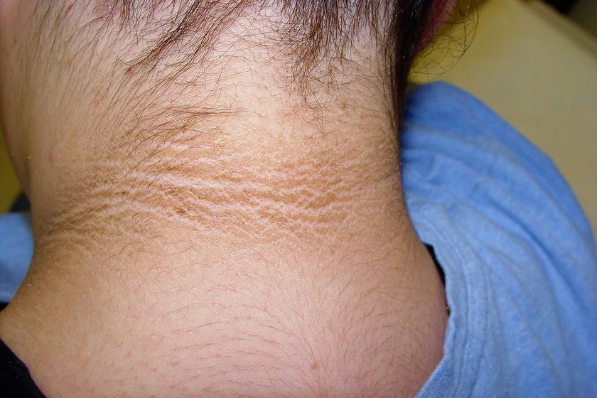 orvosság xamiol pikkelysömörre vörös foltok az arcon demodikózis