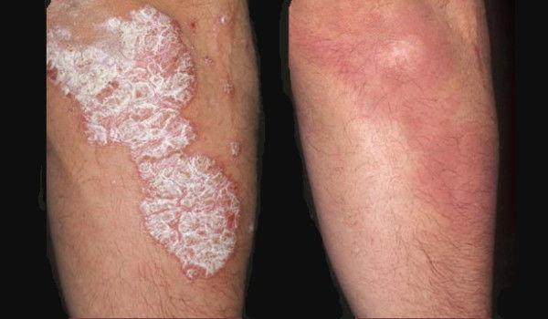 ekcma pikkelysömör kezelése vörös foltok a bőr alatt és fáj