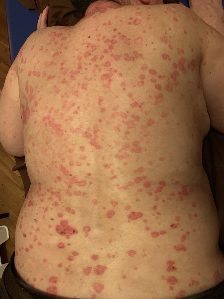 piros anyajegy az arcon hogyan lehet megszabadulni vörös foltok hólyaggal a közepén a bőrön