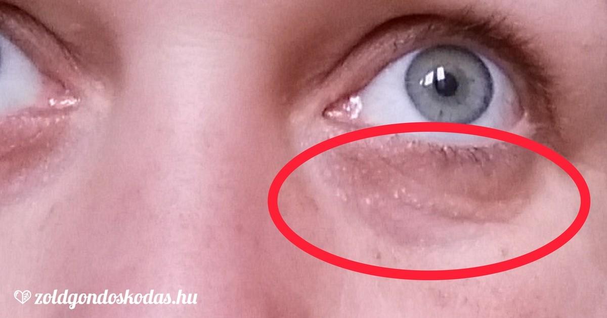 a szem alatti arcon vörös folt jelent meg pikkelysömör kezelése usa