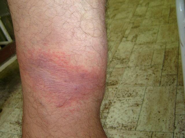 a lábak duzzanata és vörös foltok a lábakon