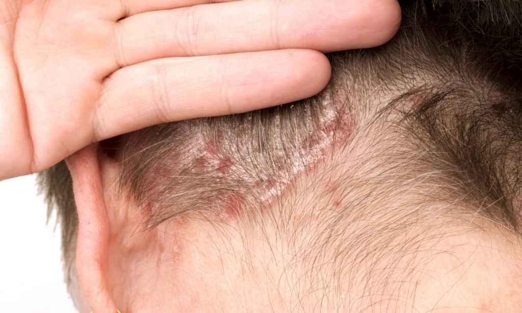 gyógyszerek monoklonlis antitestekkel pikkelysmr kezelsre