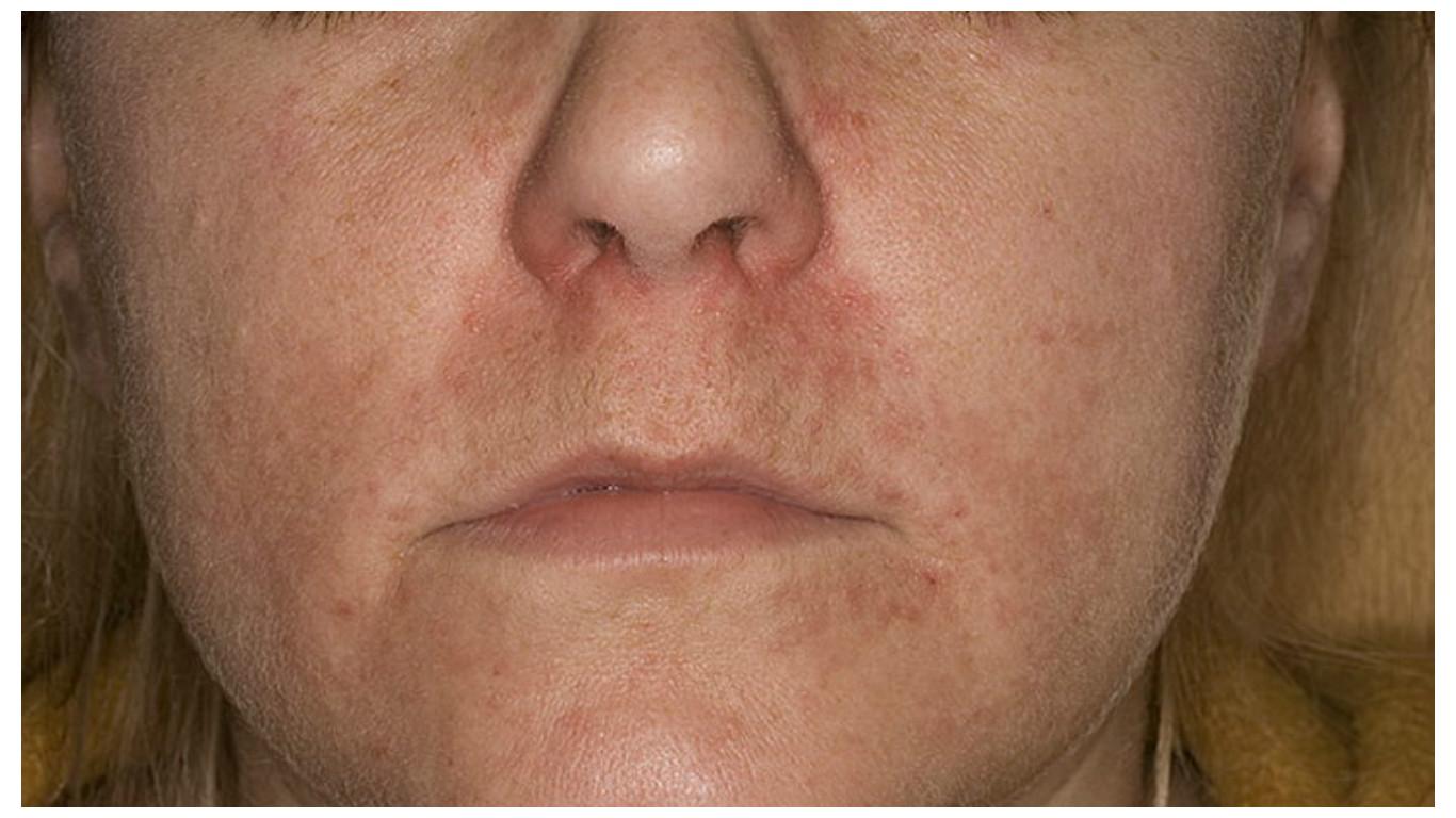 miért mosás után az arc vörös foltokkal borul