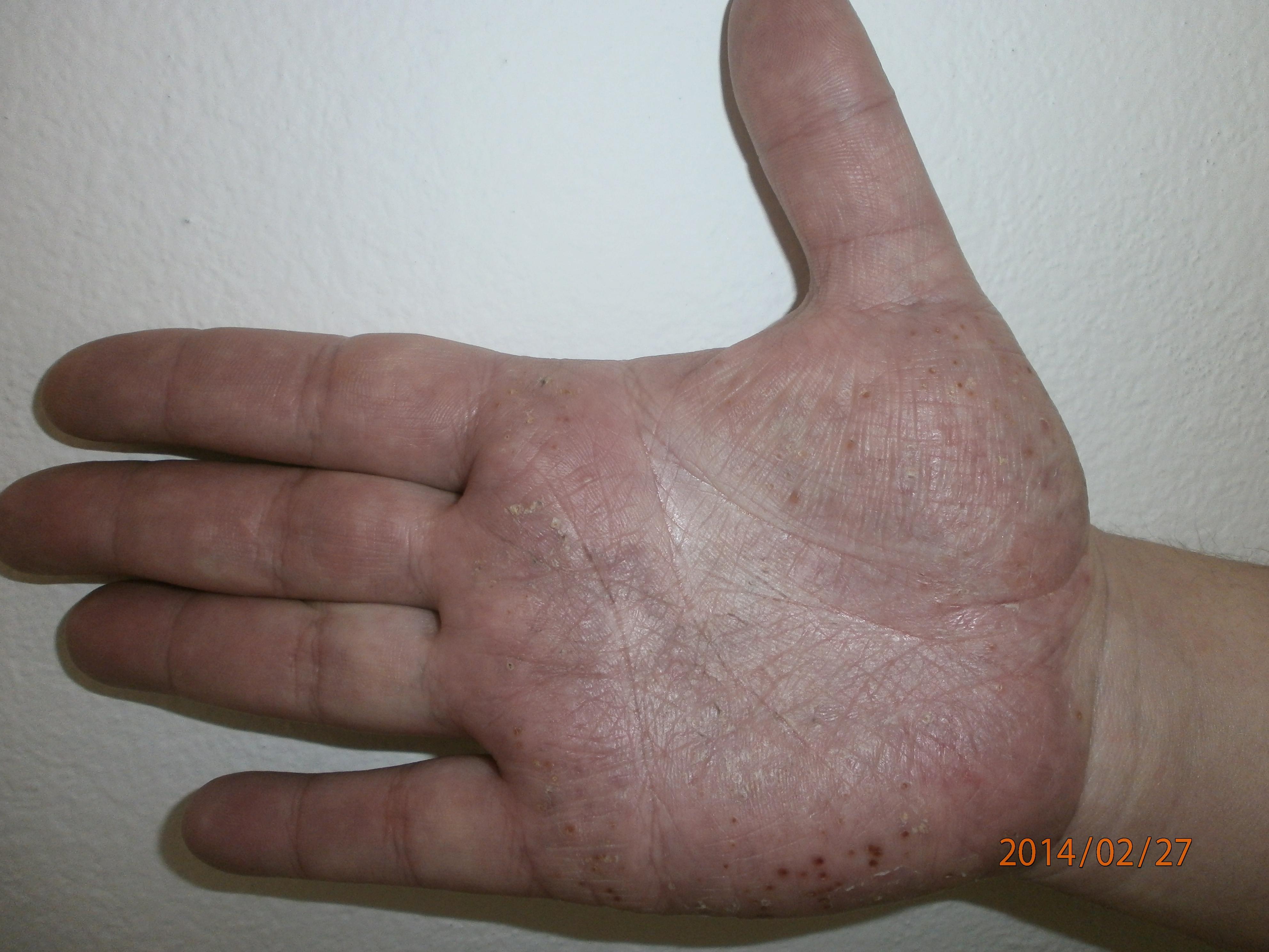 psoriasis kezels cikk vörös száraz foltok a száraz bőrön