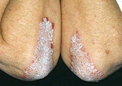 piros foltok a lábakon viszket fénykép hogyan lehet megszabadulni a pikkelysmr felülvizsgálatától
