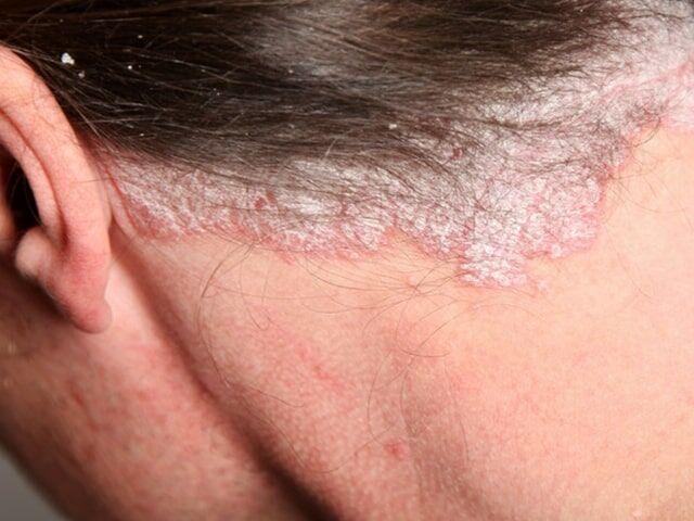 gyógyítja a pikkelysömör ásványvizekkel hogyan kezelik a pikkelysmr az orvostudomnyban