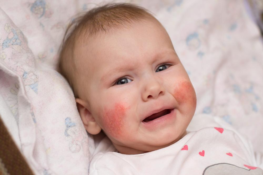 viszkető arc és vörös foltok