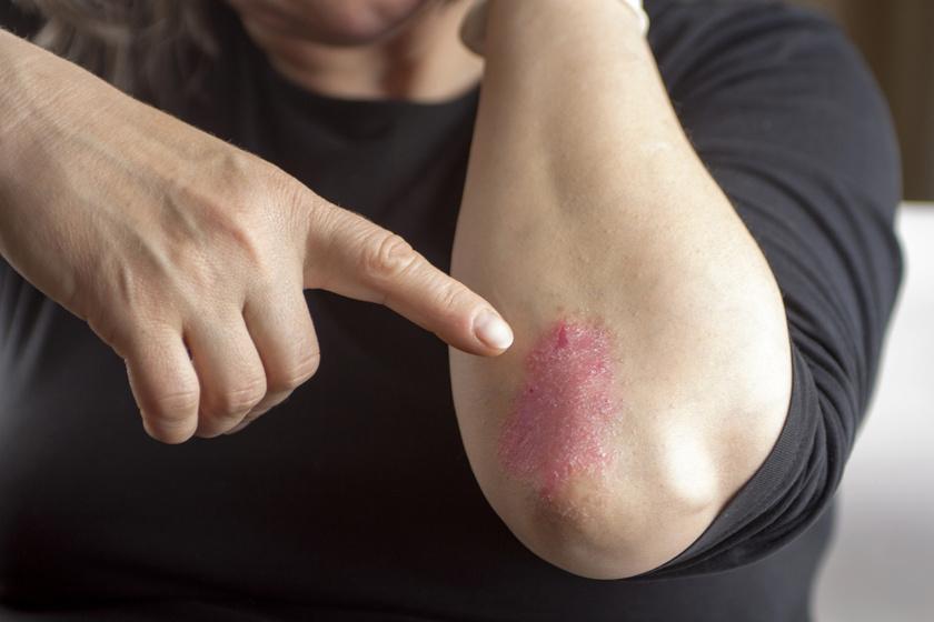 piros foltok a kezeken egy pont belsejében pikkelysömör kezelésének ideje