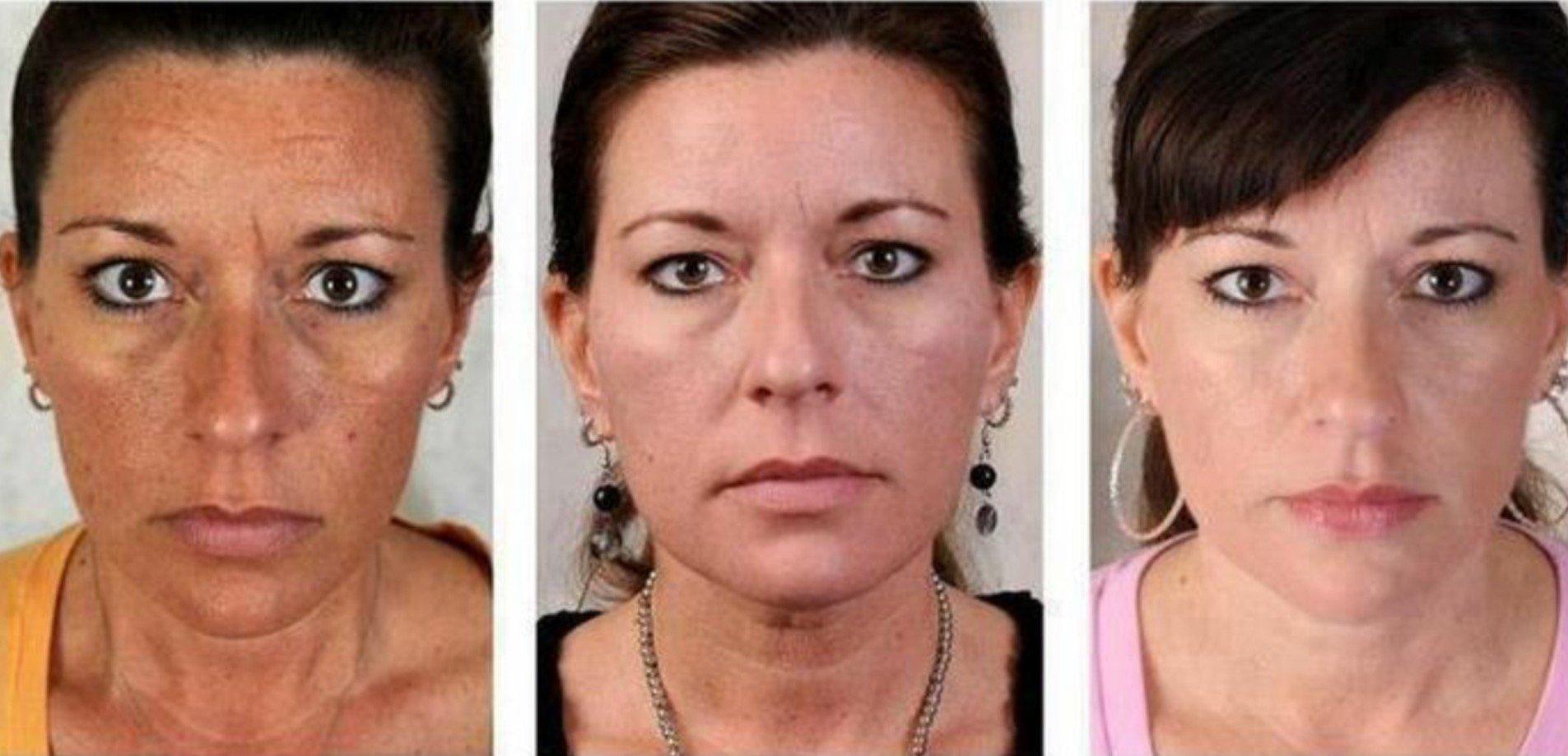 Hogyan lehet eltávolítani a vörös foltok akne után az arcon - Bőrgyulladás November