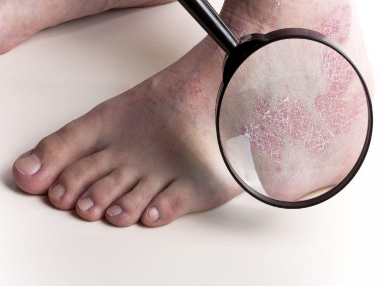 Milyen gyógyszer képes megtisztítani a paraziták testét - Amway féreg orvoslás