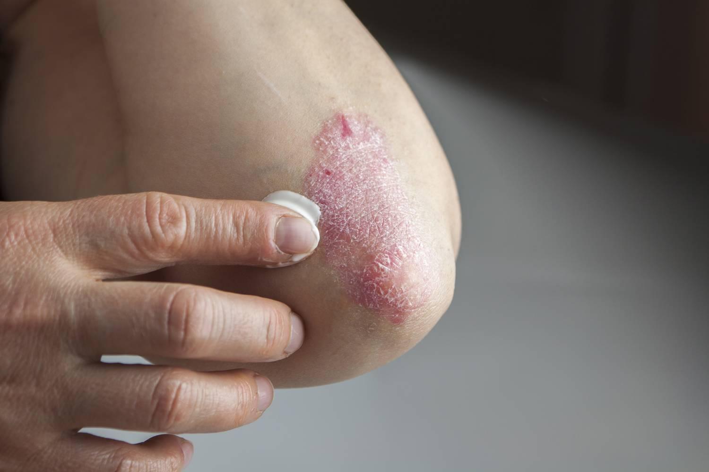 Hogyan tehető tünetmentessé a pikkelysömör?