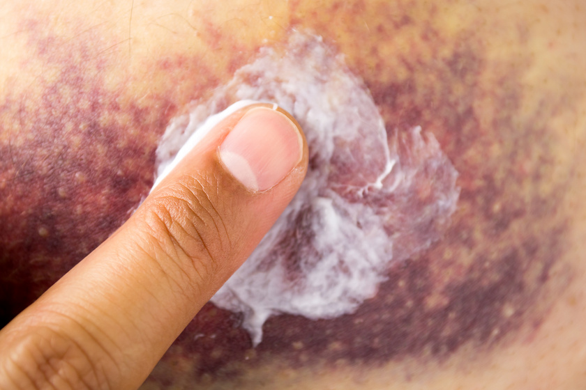 Szimpatika – Milyen szervi bajokra utalhatnak a kiütések?