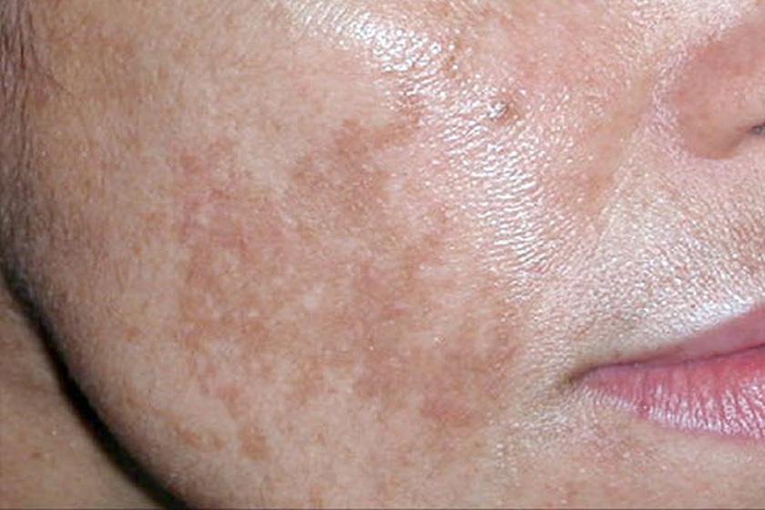 vörös folt az arcon hámlasztó kezelés