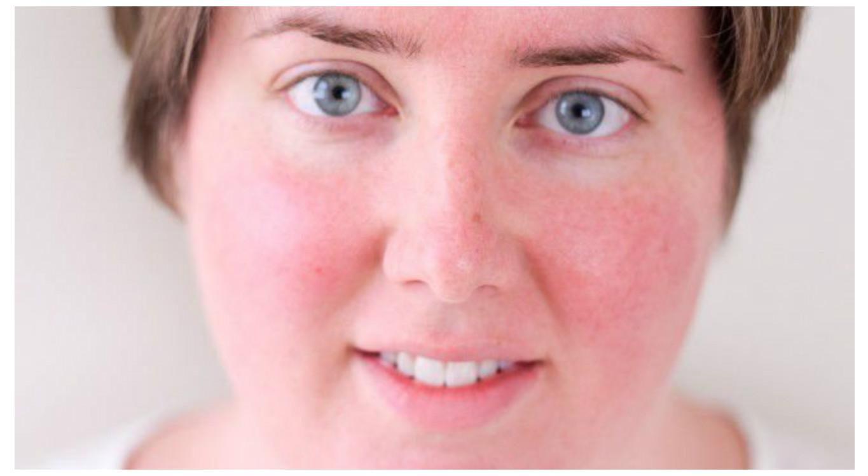 100 pikkelysömör orvosság német psoriasis kezelése