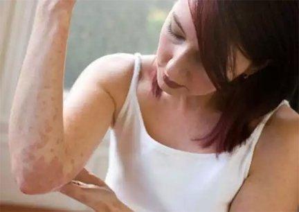 az egsz test pikkelysömörének alternatív kezelse