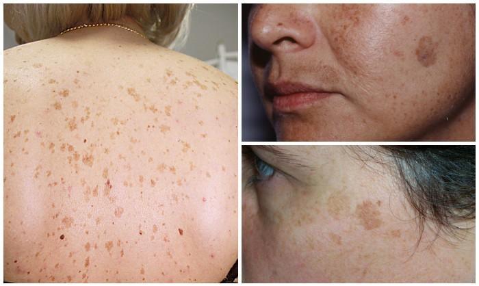 olyan betegségek, amelyekben vörös foltok jelennek meg a bőrön miért reggel vörös foltok borítják az arcot