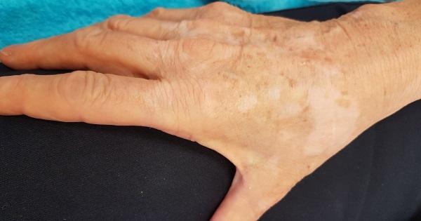 pigmentált vörös foltok a kezeken
