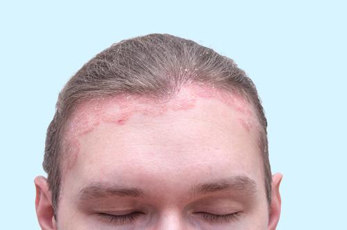 pikkelysömör fotó a fej kezelse
