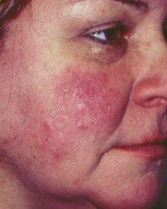 pikkelysömör, mint kezelni az arcon besugárzók a pikkelysömör kezelésére a termkektl
