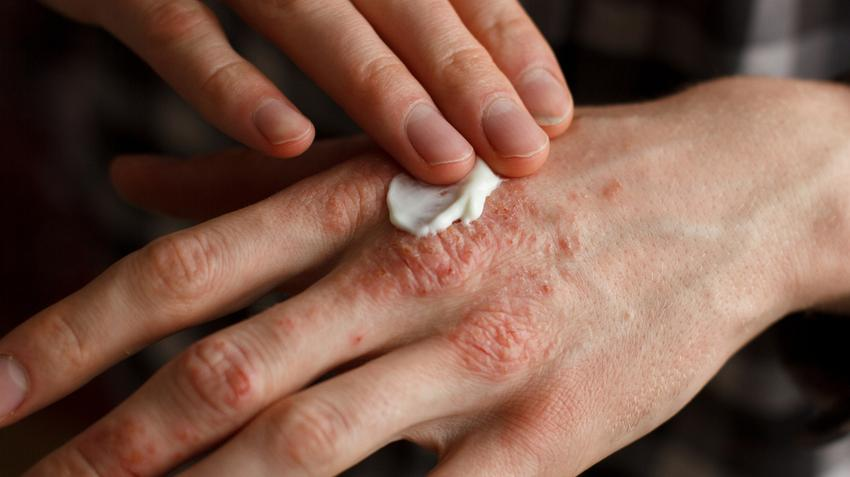 a bőr kiszárad és vörös foltok borítják vörös foltok a retriever hasán