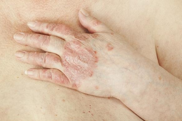 puwa terápia a pikkelysömör kezelésében fotó piros folt a lábán