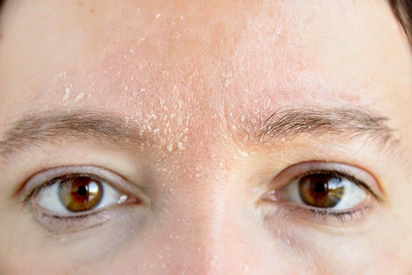 súlyosan hámló arcbőr és vörös foltok