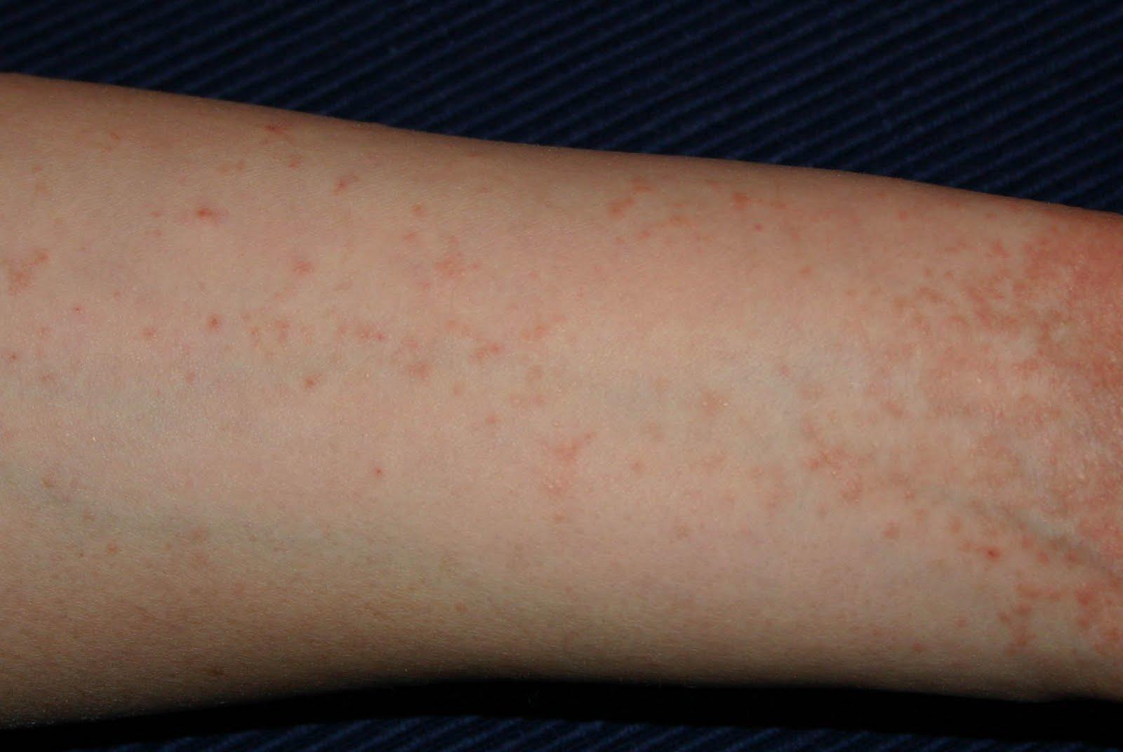 Állandó kék-zöld foltok a testen: súlyos szervi oka is lehet - Egészség   Femina