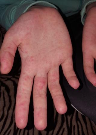 vörös folt a kezén hogyan kell kezelni kenőcs pikkelysömörre méhviaszjal
