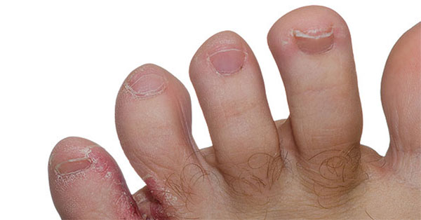 vörös folt a kezén hogyan kell kezelni korpásodás elleni szer pikkelysömörhöz