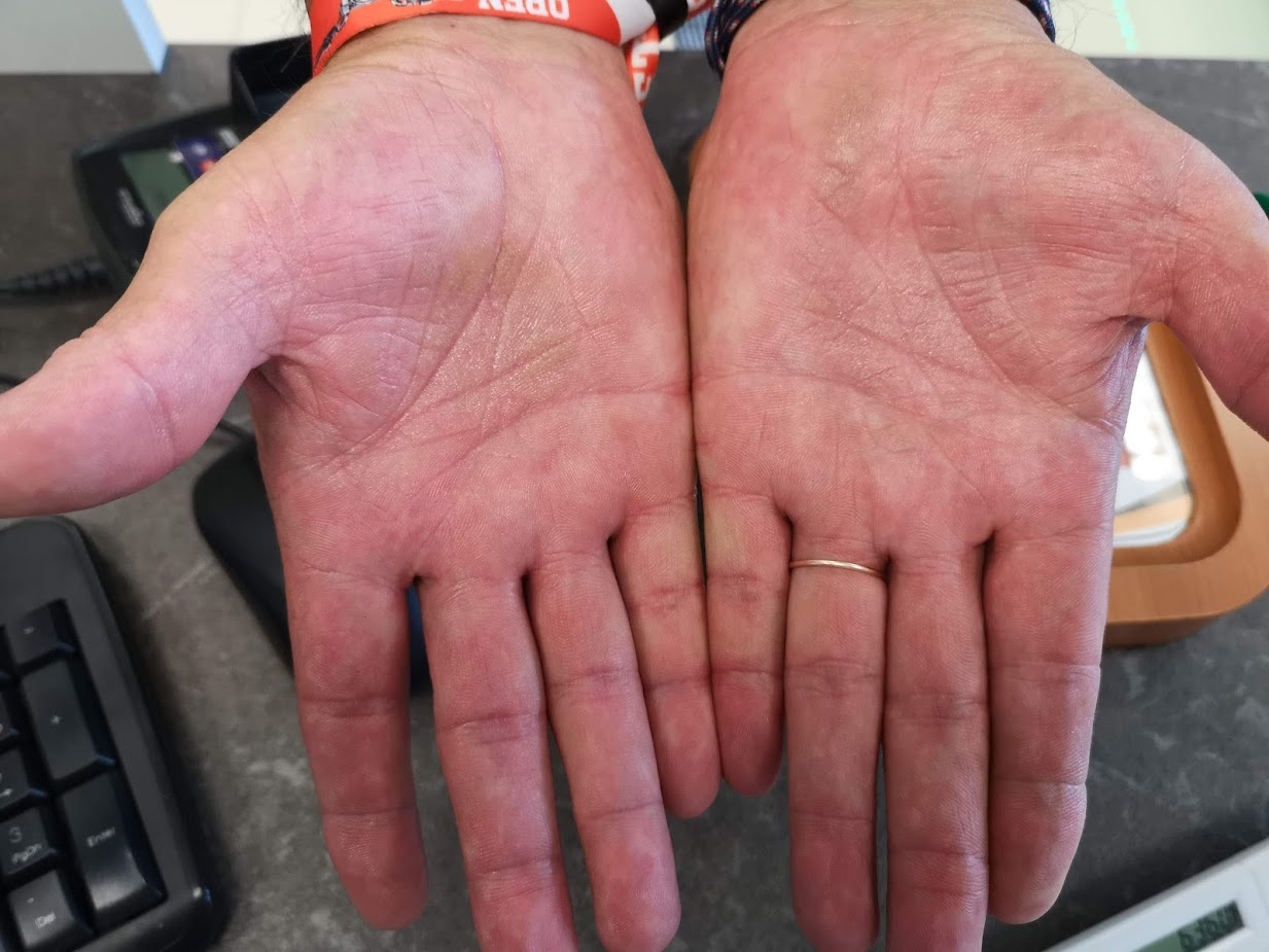 psoriasis on toes kezelés vörös könyök a könyökön viszketést okoz