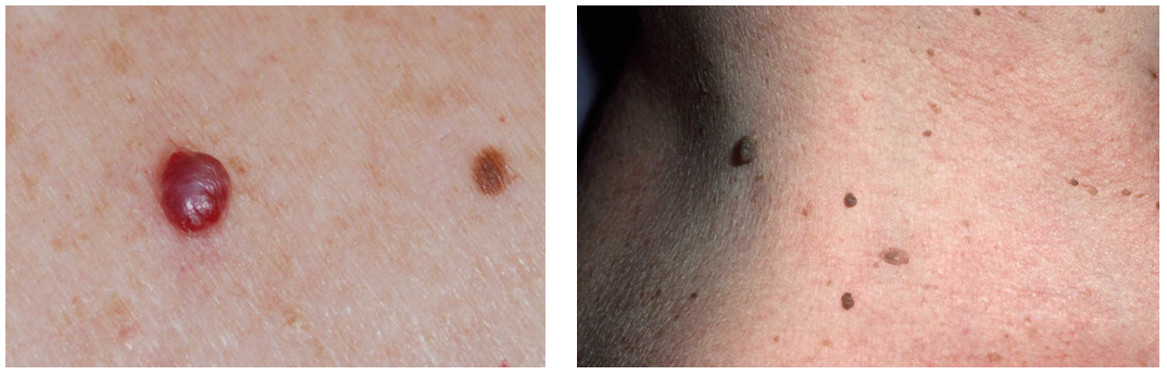 arc vörös foltokkal a hámozás után pikkelysömör a lábakon okai és kezelése