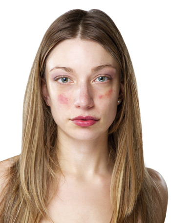 vörös foltok a homlokon pikkelyesek a pikkelysömör gyógyszereinek mellékhatásai