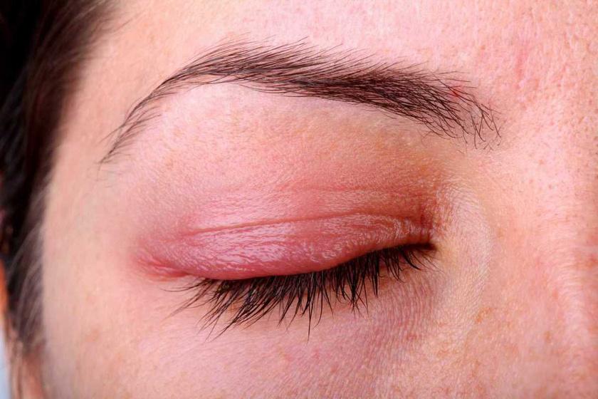 vörös foltok a szem alatt pikkelyes viszketnek kerek piros folt a bőrön, amely lehámlik