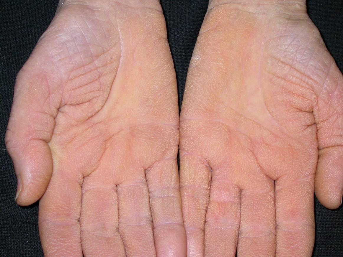 kezelés Magyarorszgon psoriasis