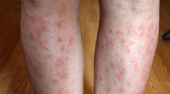 vörös foltok a térdeken és a lábakon
