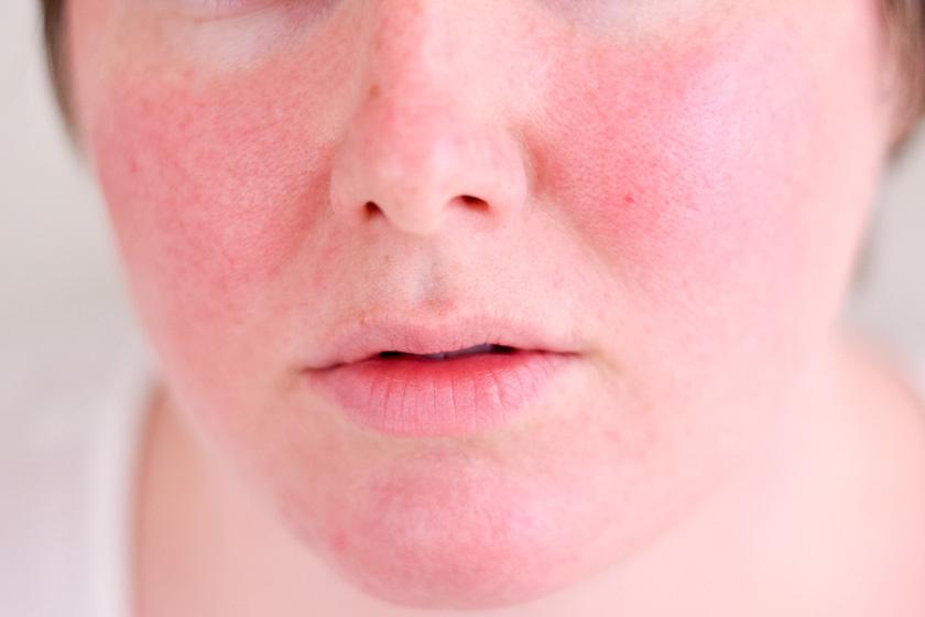 vörös foltok az arcon az antibiotikumok után