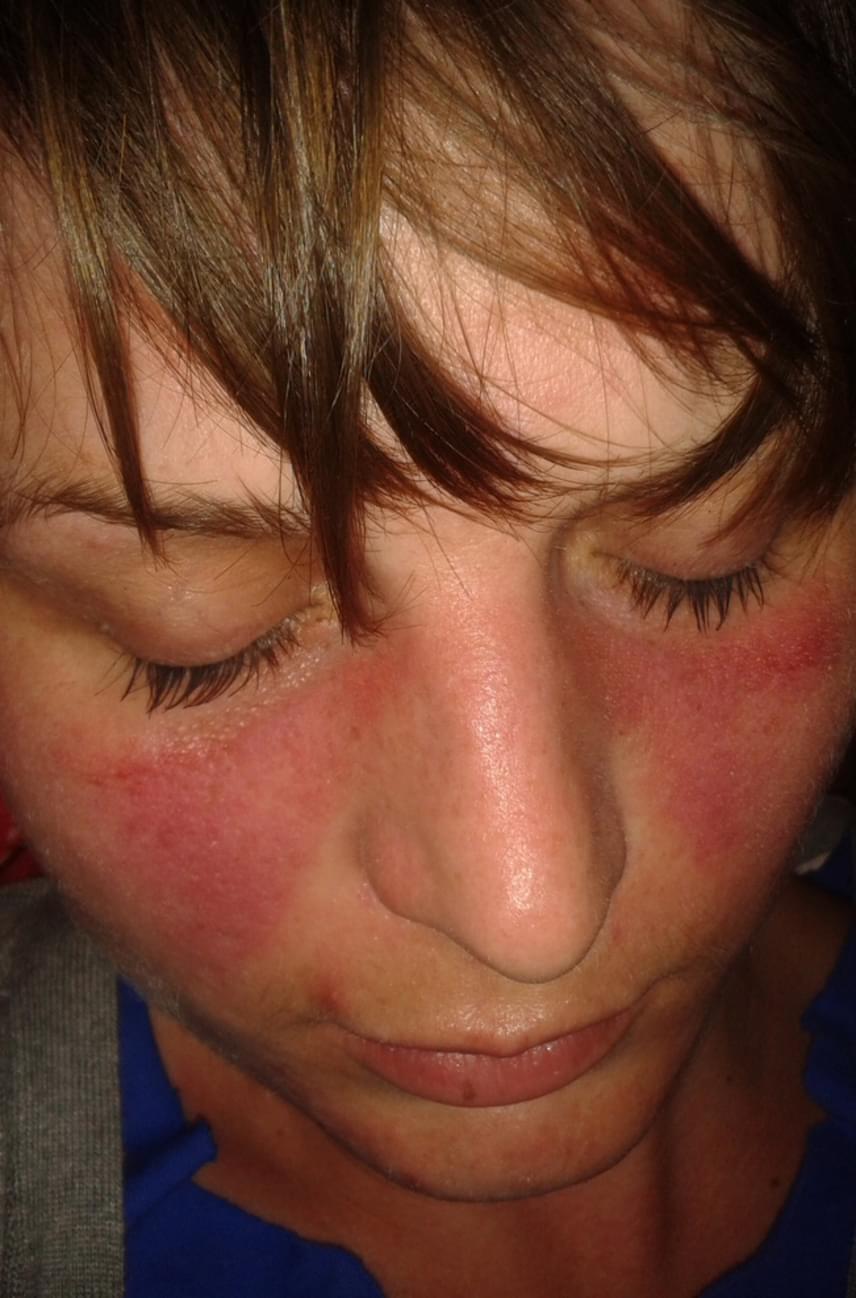 vörös foltok az orr körül, hogyan lehet eltávolítani kézi pikkelysömör kezelés vélemények