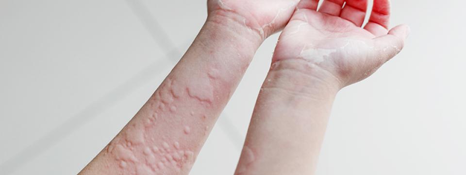 vörös viszkető foltok a testen hogyan kell kezelni ekcéma pikkelysömör gyógyszer