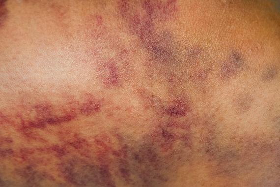 Vénás keringési elégtelenség okozta sebek - Sebkezelémakeup4u.hu