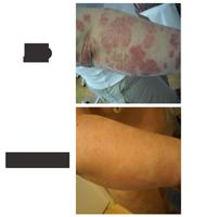 Psoriasis és paraziták kezelése