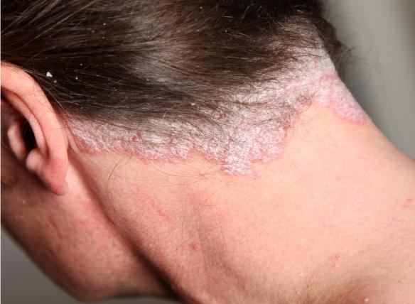 krém - viasz egészséges a pikkelysömör rendjéből olcsó kenőcsök a fejbőr pikkelysömörére