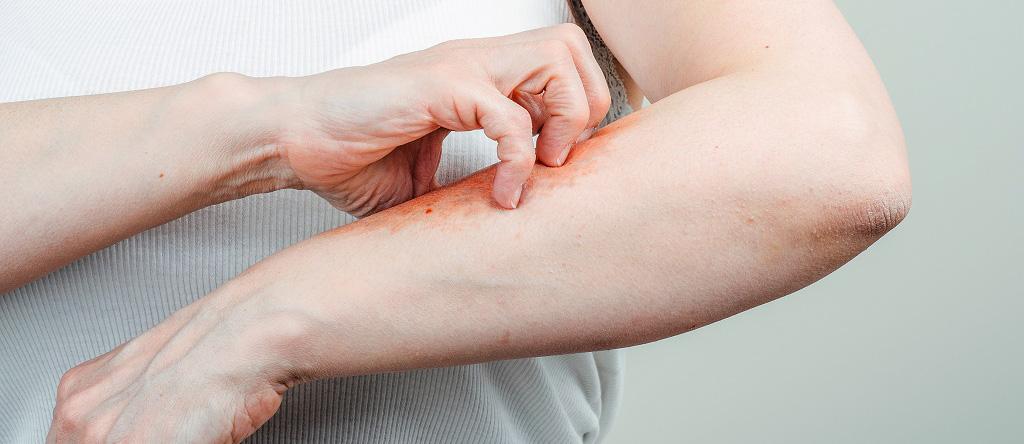 pikkelysömör gyógyszerei metotrexáttal hogyan kell helyesen kezelni a pikkelysmrt otthon