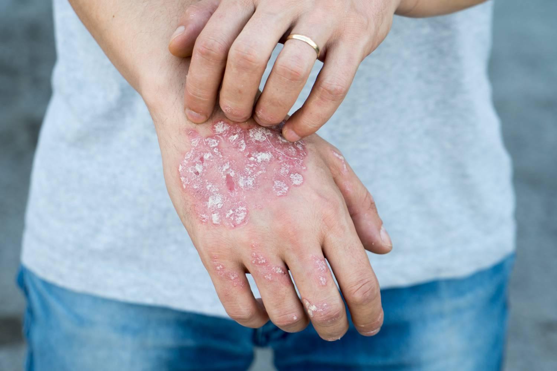 kalcium pikkelysömör kezelése