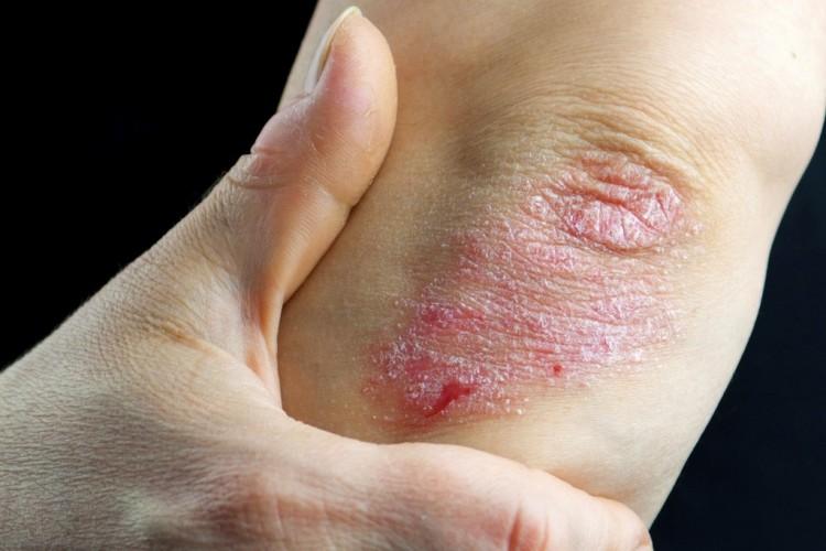 pikkelysömör kezelése és tisztítása vörös foltok a lábakon, mint a kullancsok