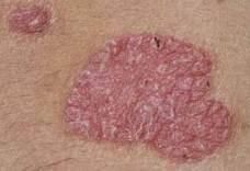 metotrexát vélemények a pikkelysömör kezelésében pikkelysömör kezelése mariupolban